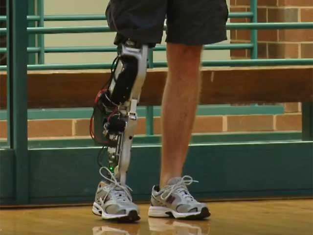 lower-limb-prosthetic